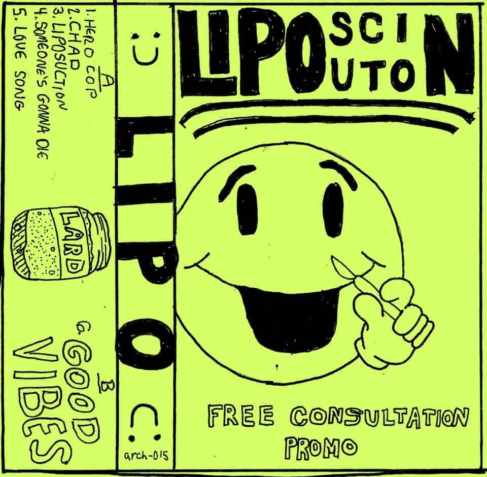 Liposuction - Free Consultation